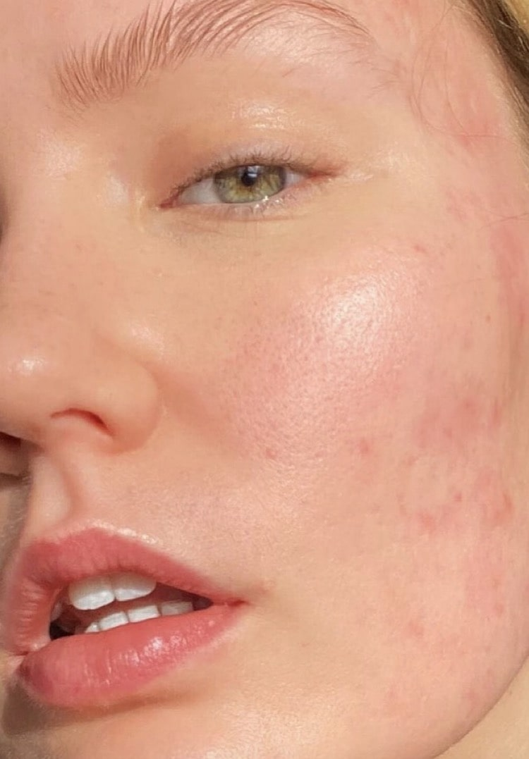 How getting acne in my early twenties helped me to build self-confidence