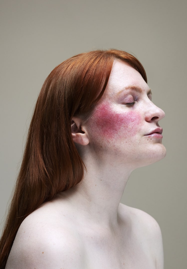 What is rosacea and can you overcome its incurability?